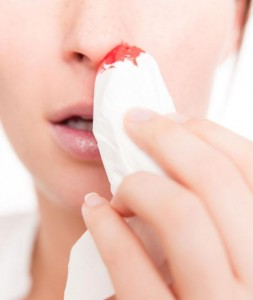 Home Remedies for Nose Bleeding