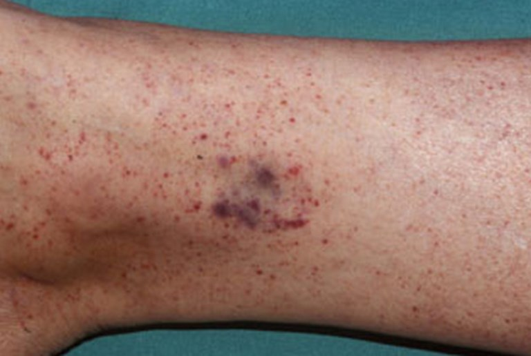 Petechiae-photos