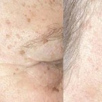 Simple Home Remedies for Age Spots Treatment