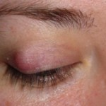 Ayurvedic Home Remedies for Eyelid Cysts