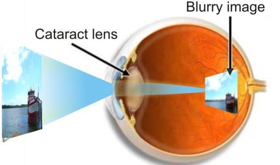 home remedies for cataract eye